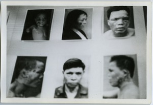 Thumbnail of Facial burns from United States napalm attacks